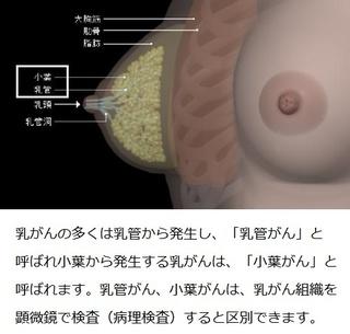 乳がん対策を民間療法に頼った海老蔵夫妻の誤算!?