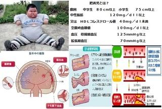 合成肥満児.jpg