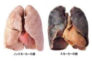 肺健康比較.png