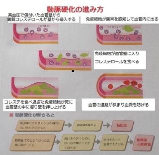 血管硬化.jpg