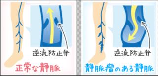 防止弁下肢の逆流.PNG