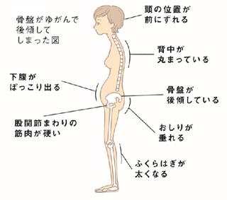 骨盤歪み体型.PNG